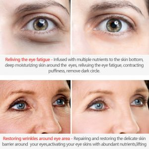 Anti Aging Cream Wrinkle Remover